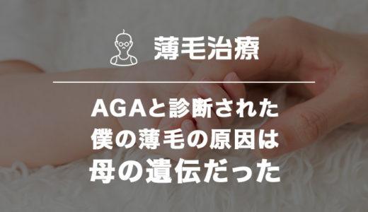 【実話】AGAと診断された僕の薄毛の原因は母の遺伝だった